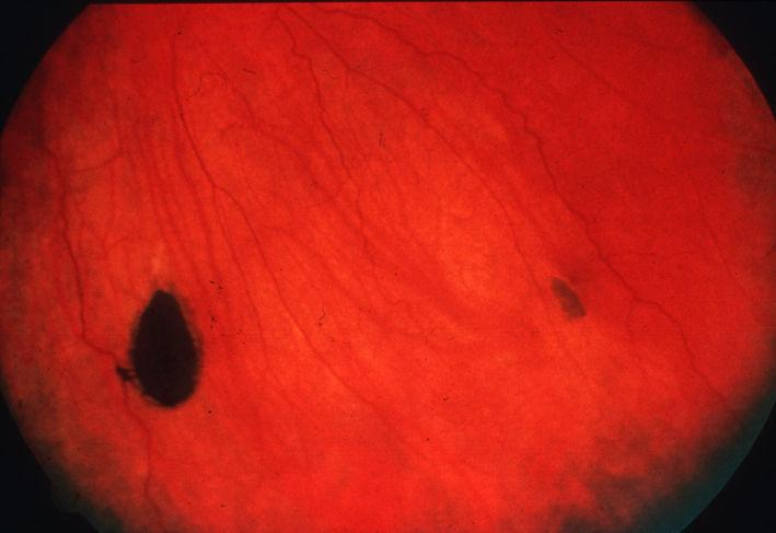 retinal pigmented epithelium (RPE)
